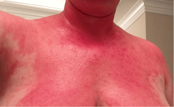 Taking steroids for allergic reaction carpal tunnel steroid injection aftercare