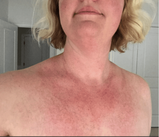 Rash after stopping steroids golden ninjas dragon
